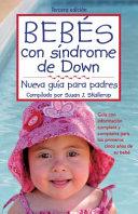 Bebes con Sindrome de Down