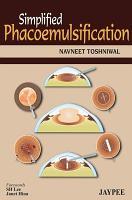 Simplified Phacoemulsification PDF