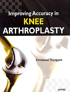 Improving Accuracy in Knee Arthroplasty