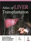 Atlas of Liver Transplantation PDF