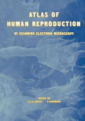 Atlas of Human Reproduction: By Scanning Electron Microscopy