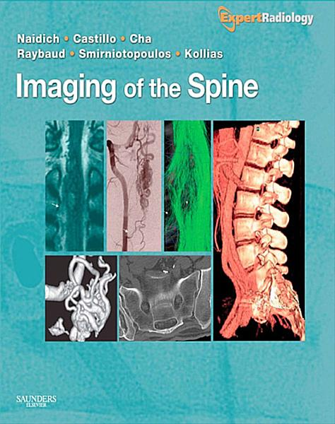 Imaging of the Spine E-Book