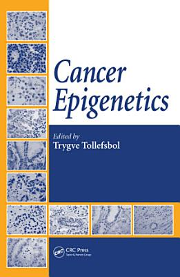 Cancer Epigenetics PDF