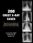 200 Chest X Ray Cases