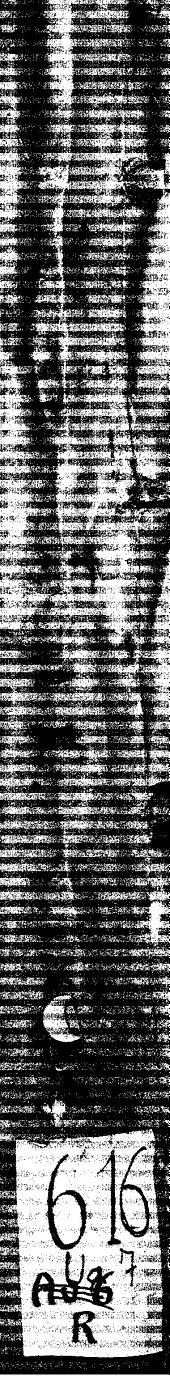 Ugo super quarta primi cum Tabula: excelle[n]tissimi Ugonis Senensis vtillisima expositio super quarta primi Auice[n]ne, necno[n] d[omi]ni Marsilij