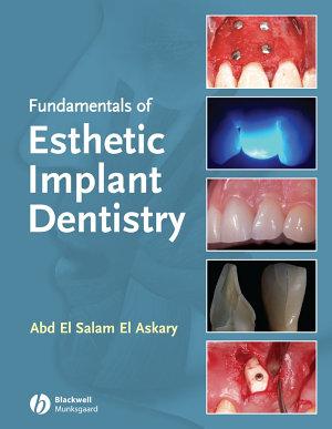 Fundamentals of Esthetic Implant Dentistry PDF