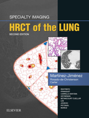 Specialty Imaging Hrct Of The Lung E Book
