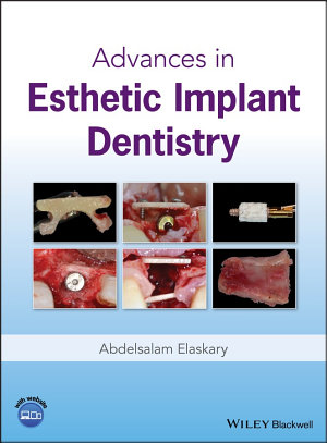 Advances in Esthetic Implant Dentistry PDF