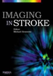 Imaging in Stroke PDF