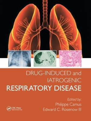 Drug induced and Iatrogenic Respiratory Disease PDF