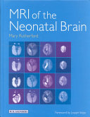 MRI of the Neonatal Brain PDF