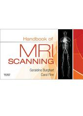 Handbook of MRI Scanning - E-Book