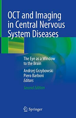 OCT and Imaging in Central Nervous System Diseases