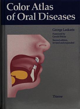 Color Atlas of Oral Diseases PDF