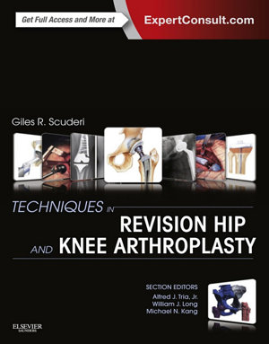 Techniques in Revision Hip and Knee Arthroplasty E-Book