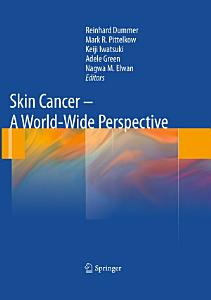 Skin Cancer   A World Wide Perspective