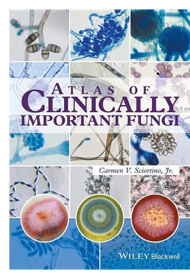 Atlas of Clinically Important Fungi PDF