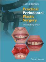 Practical Periodontal Plastic Surgery PDF