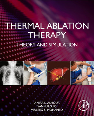 Thermal Ablation Therapy