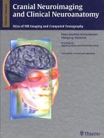 Cranial Neuroimaging and Clinical Neuroanatomy PDF