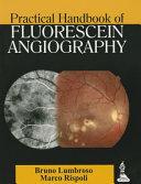 Practical Handbook of Fluorescein Angiography