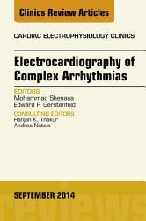 Electrocardiography Of Complex Arrhythmias An Issue Of Cardiac Electrophysiology Clinics  Book PDF