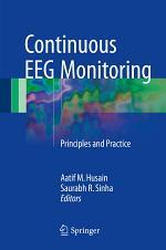 Continuous EEG Monitoring