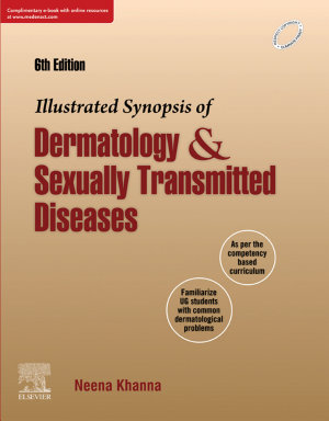Illustrated Synopsis of Dermatology   Sexually Transmitted Diseases Ebk
