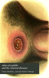 Atlas of syphilis and the venereal diseases: including a brief treatise on the pathology and treatment