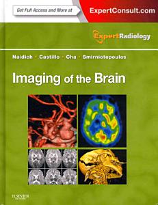 Imaging of the Brain  Expert Radiology Series 1