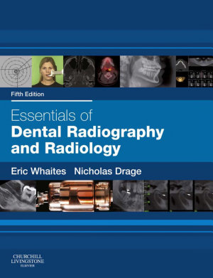 Essentials of Dental Radiography and Radiology PDF