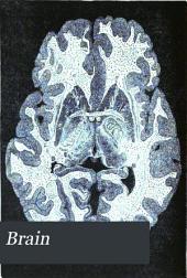 Brain: A Journal of Neurology, Volume 3