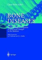Bone Diseases PDF