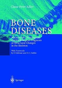 Bone Diseases Book
