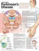 Understand Parkinson's Disease