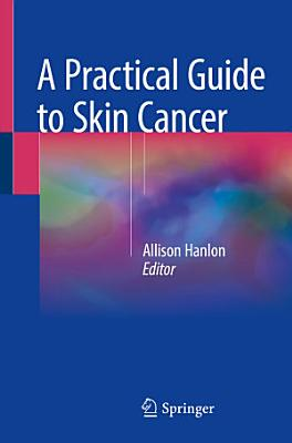 A Practical Guide to Skin Cancer