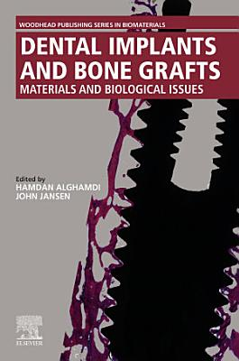 Dental Implants and Bone Grafts Materials and Biological Issues PDF