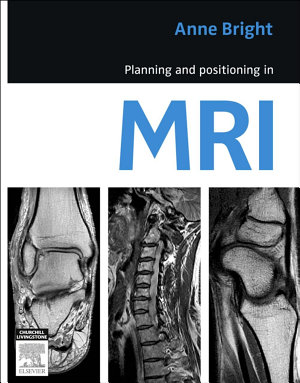 Planning and Positioning in MRI   E Book