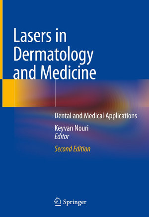Lasers in Dermatology and Medicine PDF