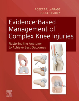Evidence-Based Management of Complex Knee Injuries E-Book