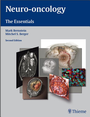 Neuro Oncology  The Essentials PDF