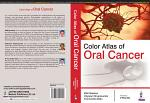 Color Atlas of Oral Cancer