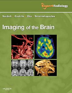 Imaging of the Brain E Book PDF