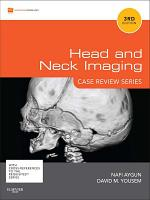 Head & Neck Imaging: Case Review Series
