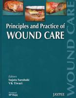 Principles and Practice Of Wound Care PDF