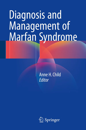 Diagnosis and Management of Marfan Syndrome