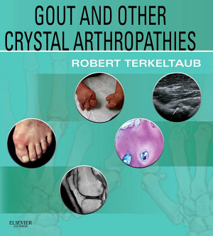 Gout   Other Crystal Arthropathies E Book