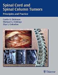 Spinal Cord and Spinal Column Tumors