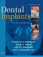 Dental Implants   E Book PDF