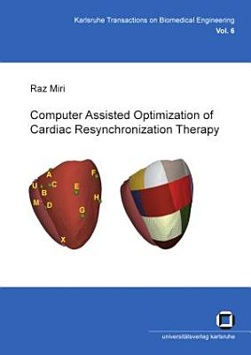 Computer Assisted Optimization of Cardiac Resynchronization Therapy